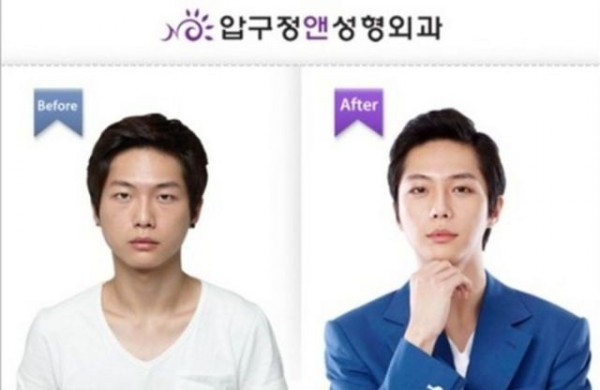 before_and_after_photos_of_korean_plastic_surgery_640_03