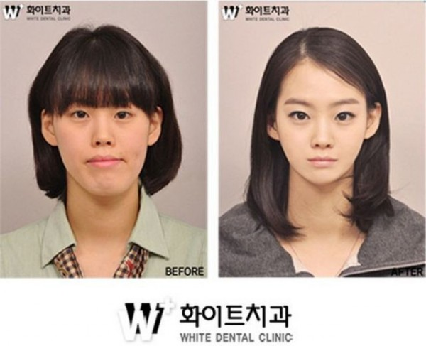 before_and_after_photos_of_korean_plastic_surgery_640_05