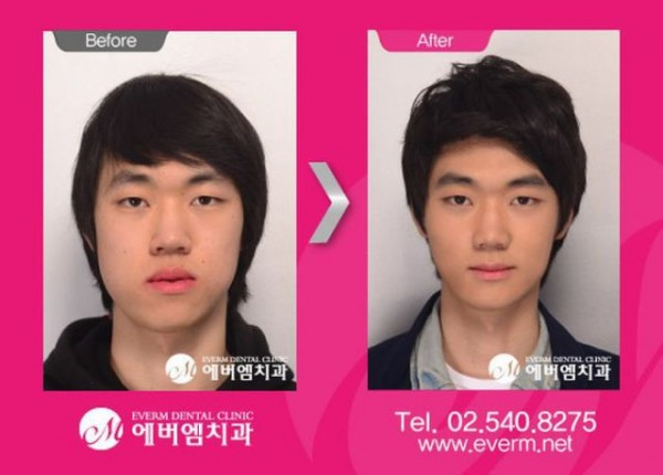 before_and_after_photos_of_korean_plastic_surgery_640_06