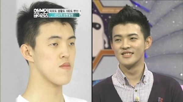 before_and_after_photos_of_korean_plastic_surgery_640_08