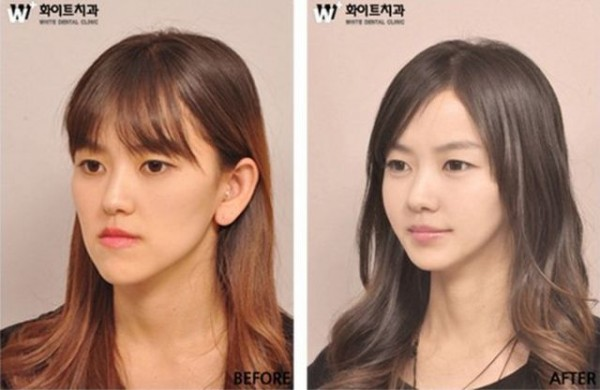 before_and_after_photos_of_korean_plastic_surgery_640_09