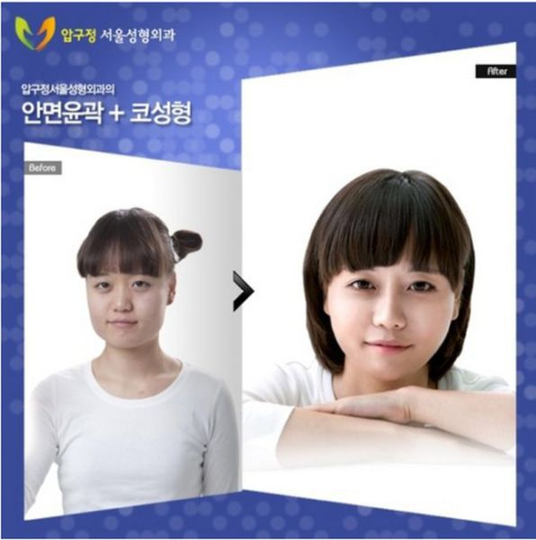 before_and_after_photos_of_korean_plastic_surgery_640_10