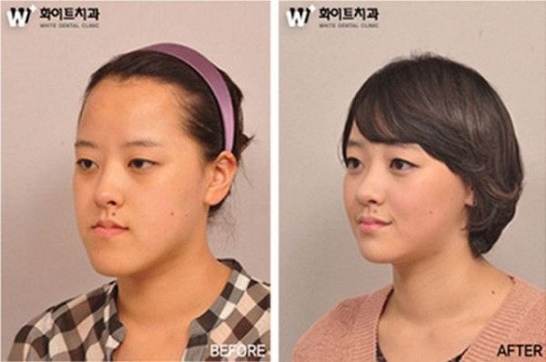 before_and_after_photos_of_korean_plastic_surgery_640_11