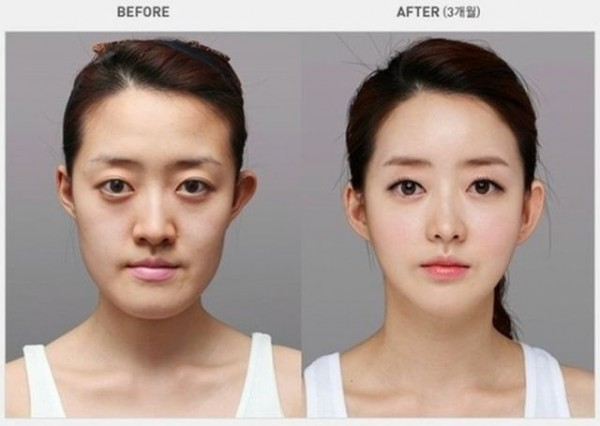 before_and_after_photos_of_korean_plastic_surgery_640_14