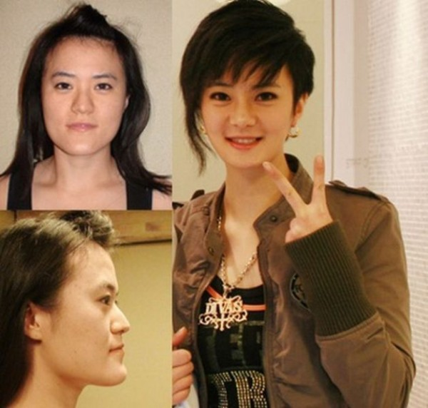 before_and_after_photos_of_korean_plastic_surgery_640_17