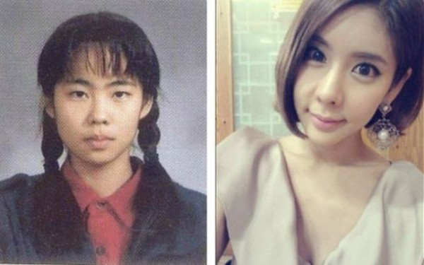 before_and_after_photos_of_korean_plastic_surgery_640_20