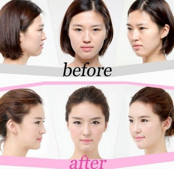 before_and_after_photos_of_korean_plastic_surgery_640_21