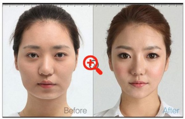 before_and_after_photos_of_korean_plastic_surgery_640_22
