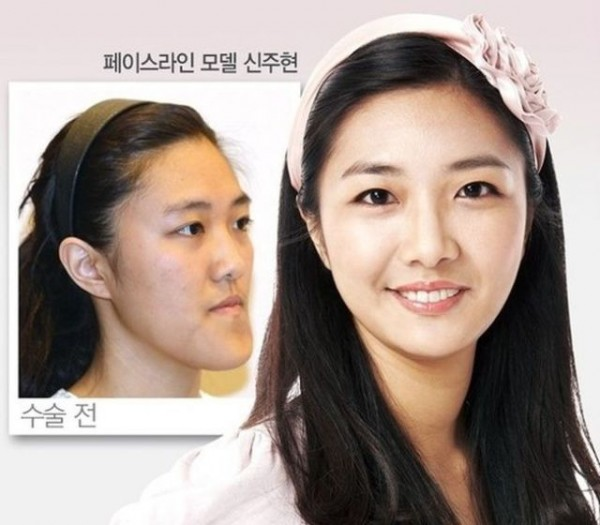 before_and_after_photos_of_korean_plastic_surgery_640_23