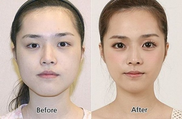 before_and_after_photos_of_korean_plastic_surgery_640_24