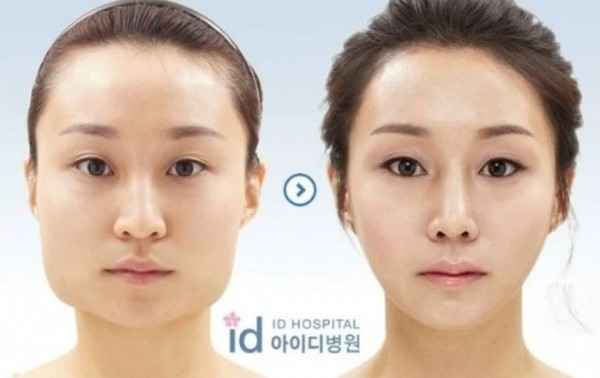 before_and_after_photos_of_korean_plastic_surgery_640_25
