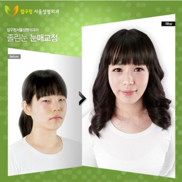 before_and_after_photos_of_korean_plastic_surgery_640_26