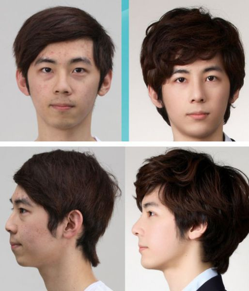 before_and_after_photos_of_korean_plastic_surgery_640_high_27