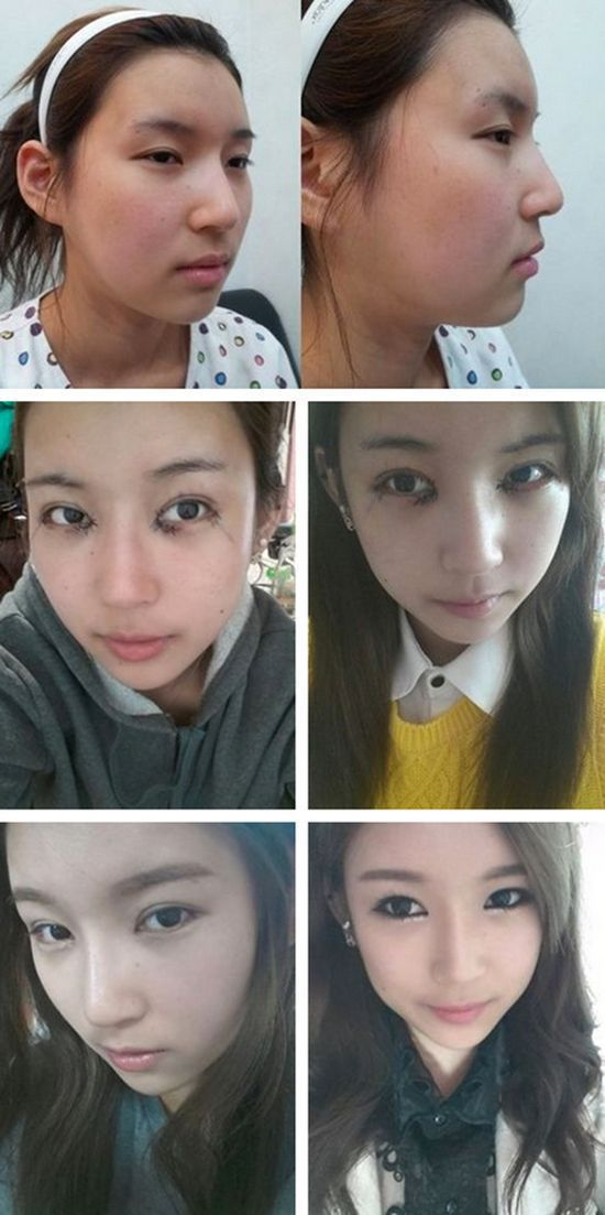 before_and_after_photos_of_korean_plastic_surgery_640_high_29