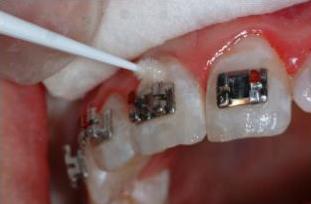ortodoncia7