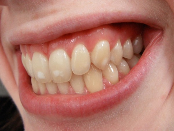 ortodoncia8