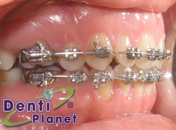 ortodoncia9