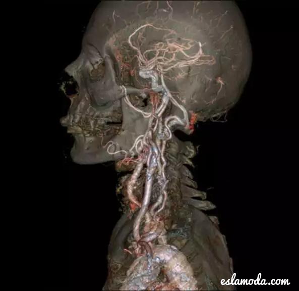 GE-CT-Scanner