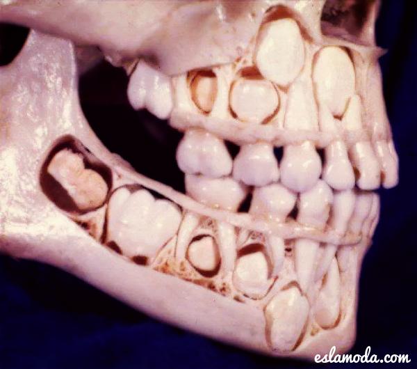 asi-se-ven-los-dientes-antes-de
