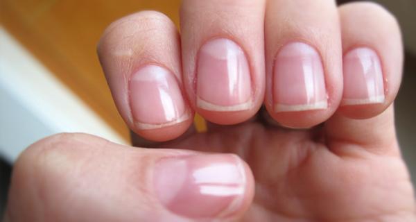 El hongo de las uñas quitar