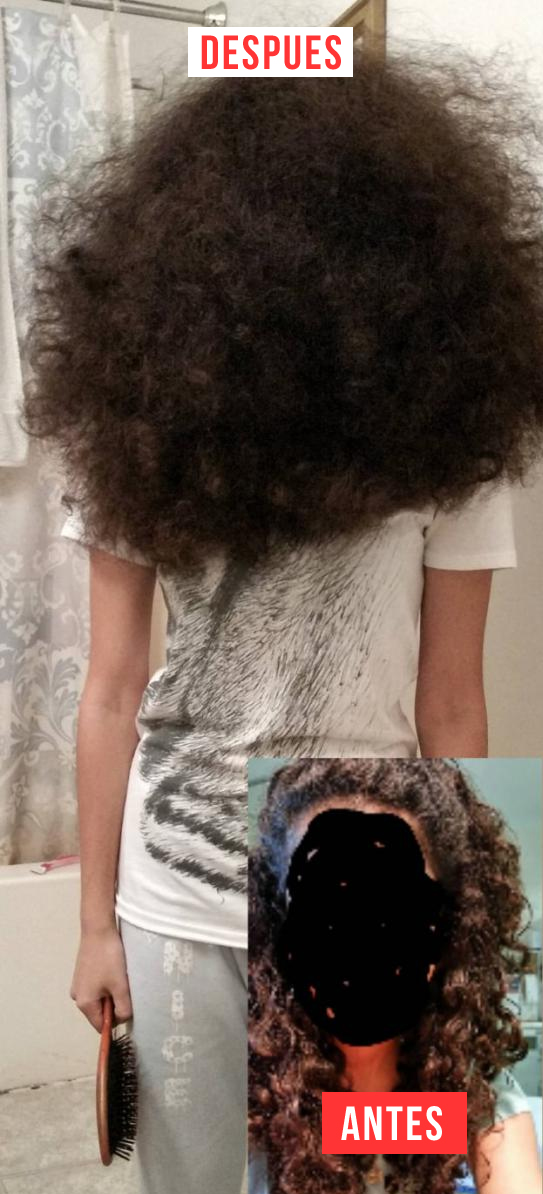 cabello-antes