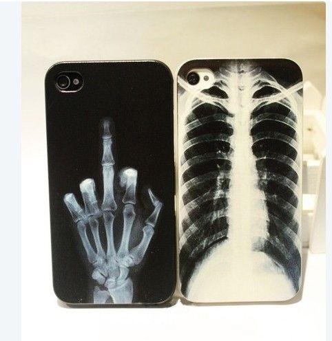 cases40