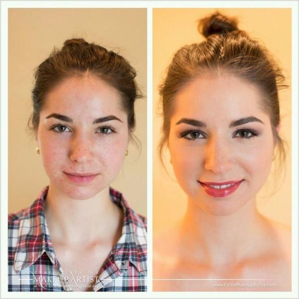 acné makeup