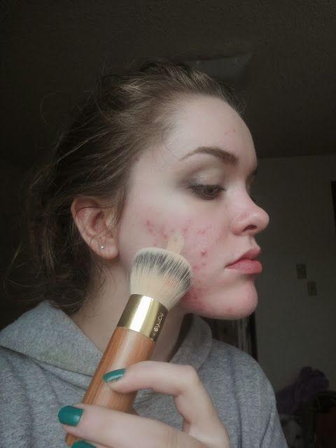acne tips