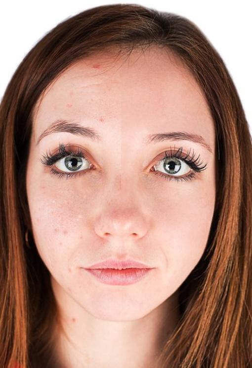 acne vitacilina