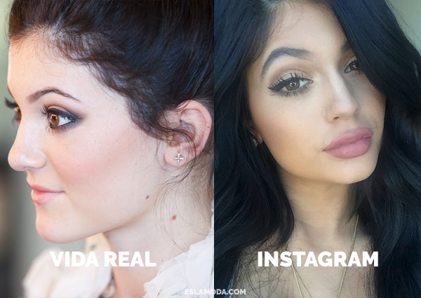 kylie-jenner-antes-y-despues
