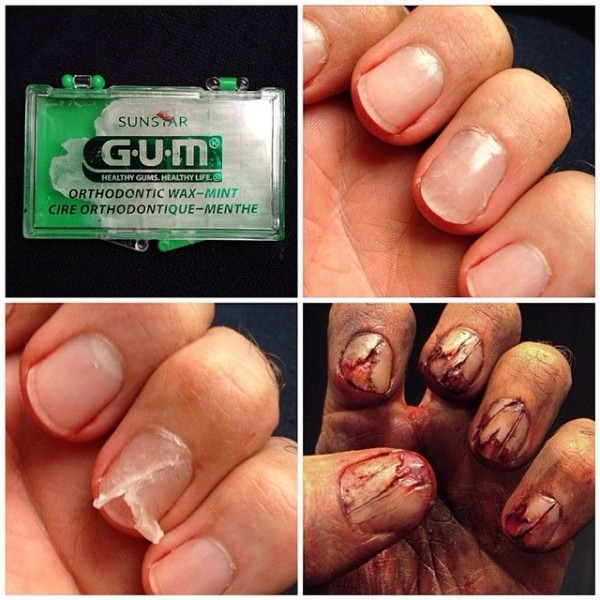 gum nails