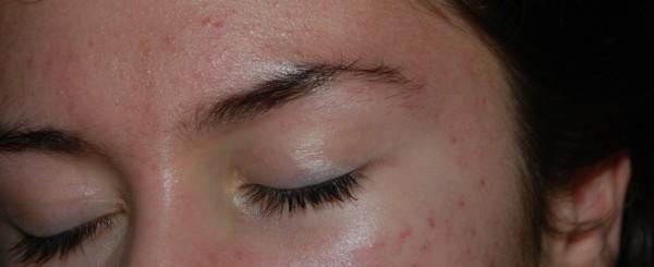 acne maquillaje