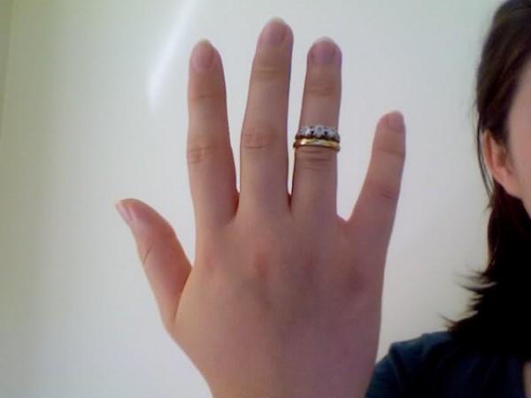 dedo gordo