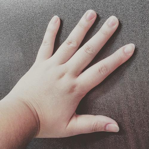 dedos grandes