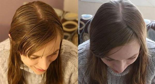 bicarbonato cabello